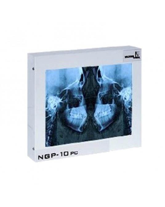 Negatoskop cefalometryczny CEFALOM-01 - Sklep medyczny / weterynaryjny - Sigmed